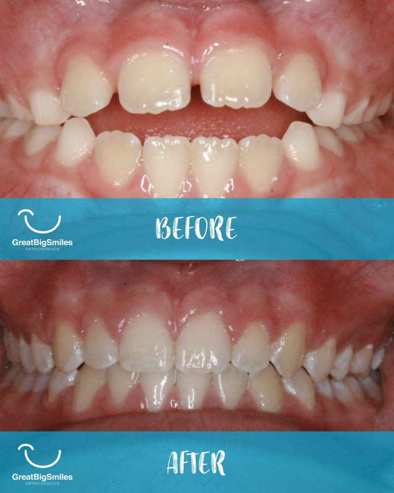 Before and after shot of orthodontic treatment
